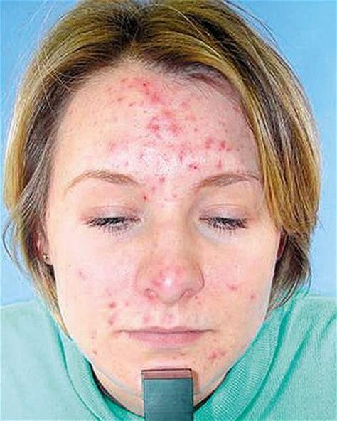 acne in women picture 14