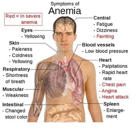 can hypothyroidism cause anemia picture 2