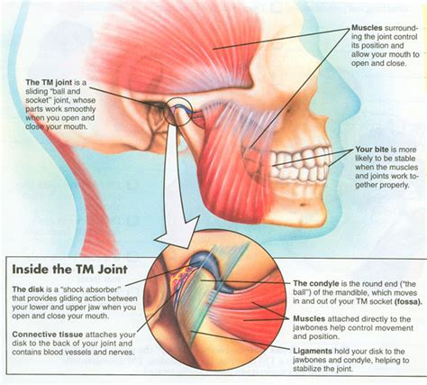 temporomandibular joint dysfunction picture 9