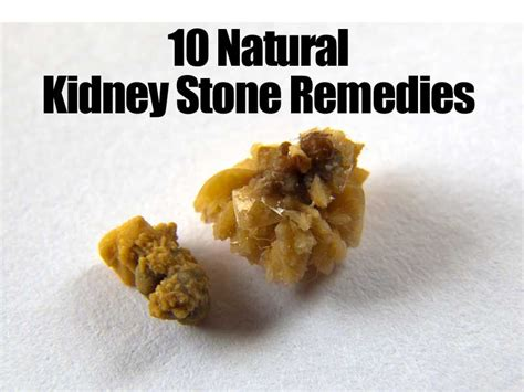 kidney stone pain relief picture 11