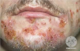 impetigo is herpes picture 19