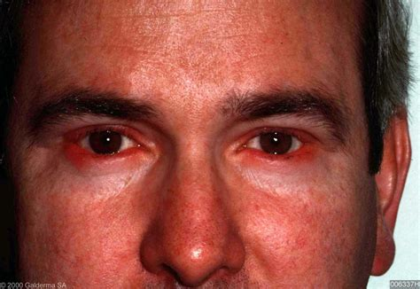 acne rosaea picture 11