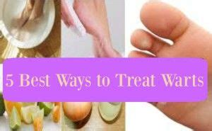 the beat way to treat warts inside of picture 6