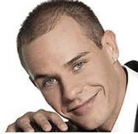 alopecia picture 10