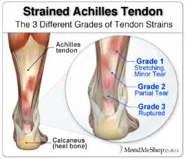 ankle joint effusion and ruptured achilles tendon picture 17