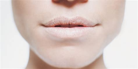 why does do to your lips picture 3