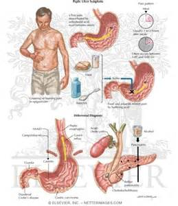 diagnosis of gastrointestinal ulcers picture 1