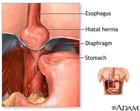crohns disease and advocare picture 3