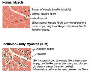 ibm of the muscle picture 2