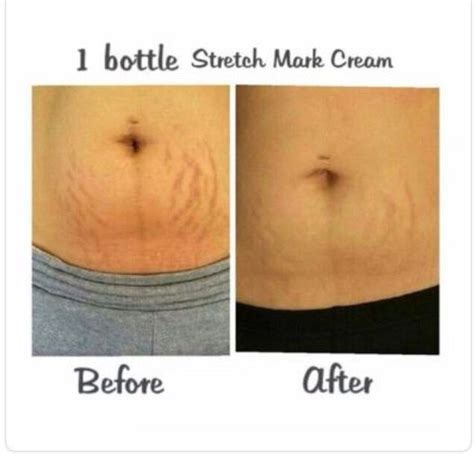 stretch mark nutrtion picture 1