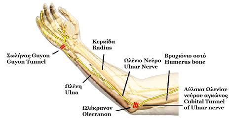 thumb joint pain picture 11