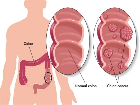 irritable bowel syndrom symptoms picture 5