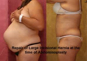 beverly hills weight loss center picture 3