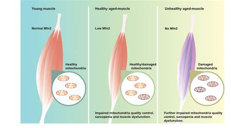 aging muscle lose picture 6