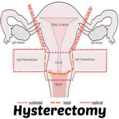 fallen bladder symtoms picture 2