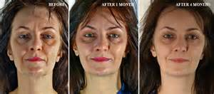 face exerciser for loose skin picture 11