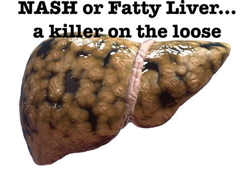 gamot para fatty liver picture 2
