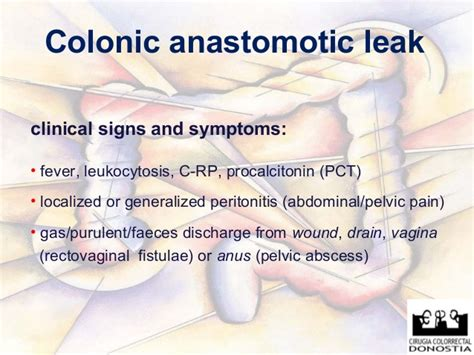 what are the symptoms of colon leaking picture 5