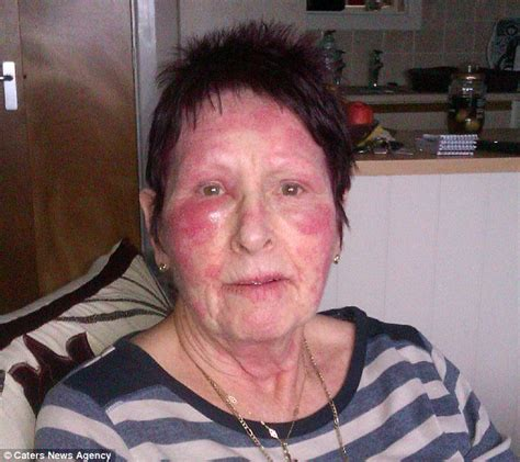 ageing wrinkle cream picture 10