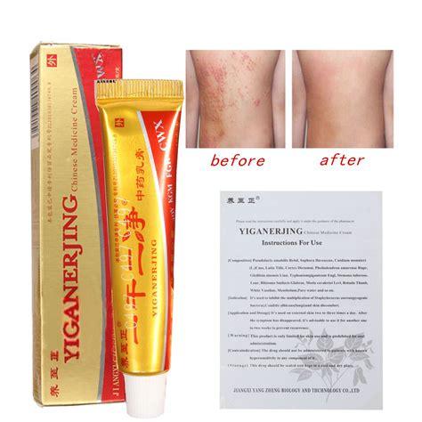mq natural chinese herbal medicine cream eczema dermatitis psoriasis vitiligo skin picture 14