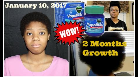 vicks and hair growth picture 6