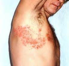 how long does herpes outbreak last picture 6