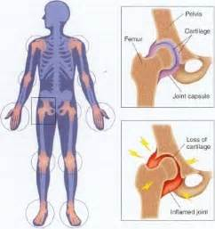 arthritis in every joint of the body picture 2