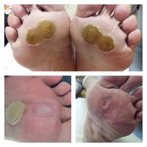 medical plantar warts picture 5