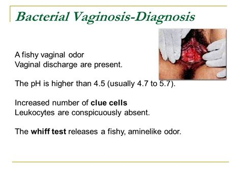what test are used for bacterial infections picture 6