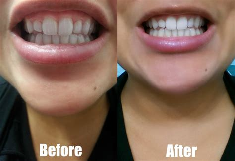 orlando teeth whitening picture 5
