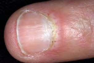 nail fungus and herpes picture 6