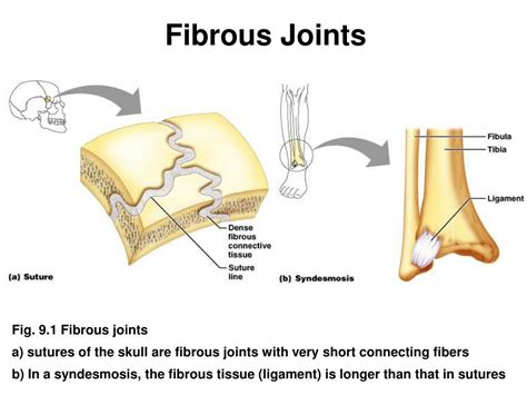 fibrous joint picture 3