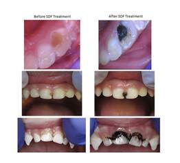 fluoride treatment for teeth picture 2
