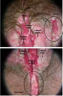 signs of herpes picture 11