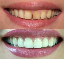 what is venner teeth picture 15