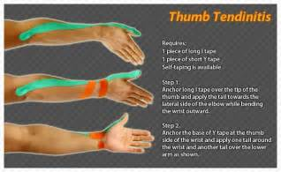 joint pain in wrist and thumbs picture 17