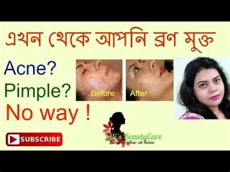 how to get ride if acne picture 6