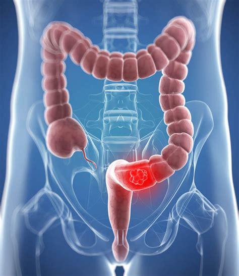 co je tumor colon picture 2