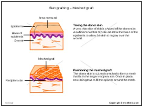 structure of the skin graphs picture 14