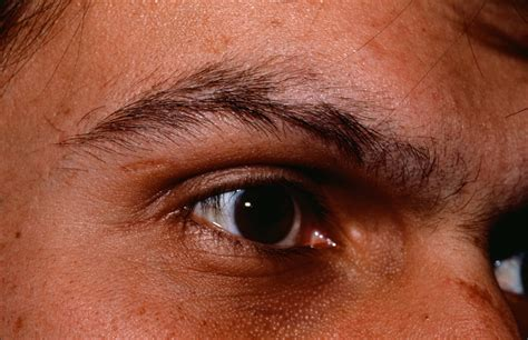 hair loss eyebrows picture 9