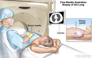 ct scan guided liver biopsy picture 2