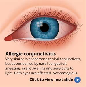 symptoms viral conjunctivitis bacterial conjunctivitis picture 5