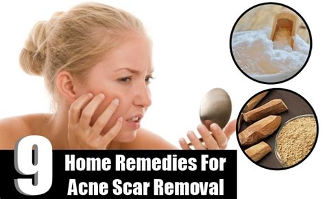 acne scar removal home picture 7