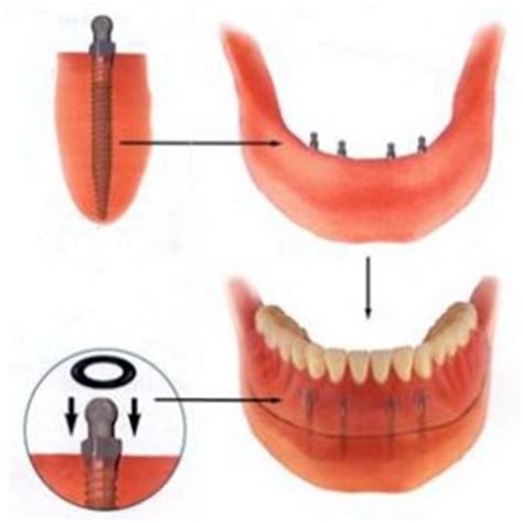 plano teeth whitening picture 3