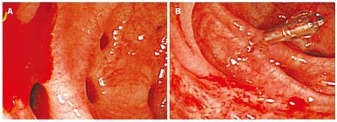 Diverticulosis of colon picture 4