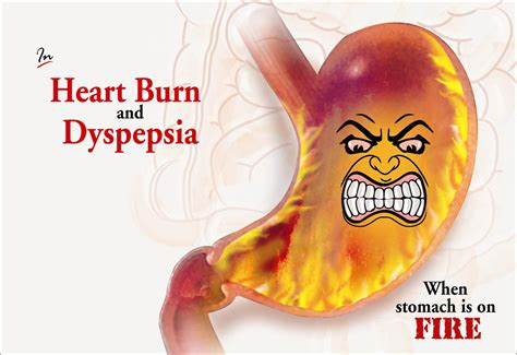 acid reflux caused by full els picture 14