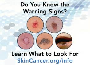 skin cancer warning signs picture 3