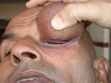 removal eyelid wart picture 14