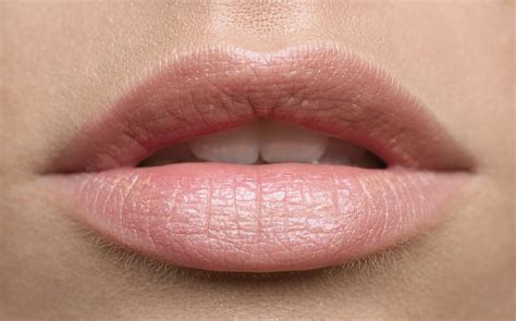 what to do for dry lips picture 11