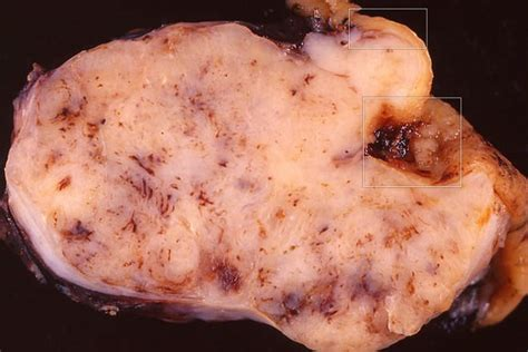 can a fungal infection resemble metastatic cancer picture 15